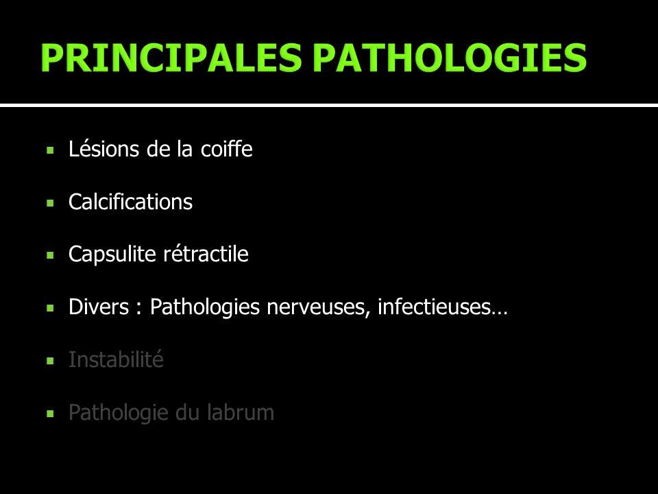 Lésions de la coiffe Calcifications Capsulite rétractile Divers : Pathologies nerveuses, infectieuses… Instabilité Pathologie du labrum