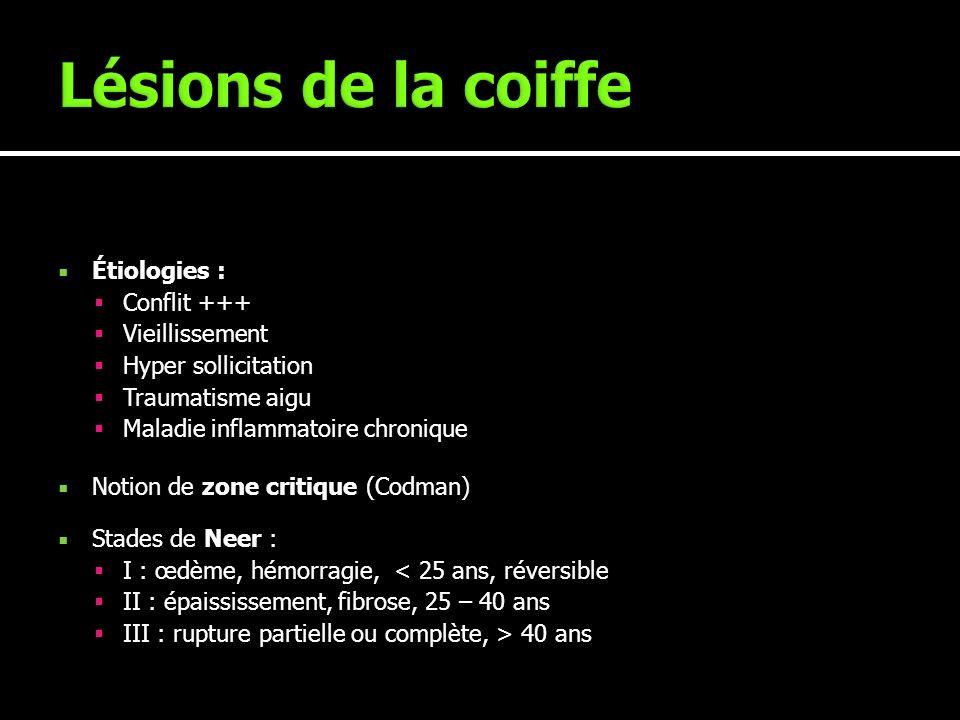 Étiologies : Conflit +++ Vieillissement Hyper sollicitation Traumatisme aigu Maladie inflammatoire chronique Notion de zone critique (Codman) Stades d