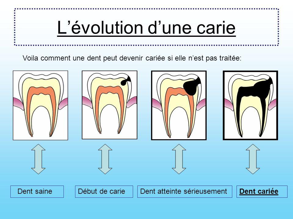 Pourquoi se laver les dents ? Les dents sont vivantes. Il faut prendre soin de nos dents sinon on peut avoir des caries. Après chaque repas, des petit