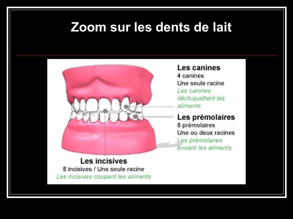 La carie dentaire La carie…qu est-ce que c est .