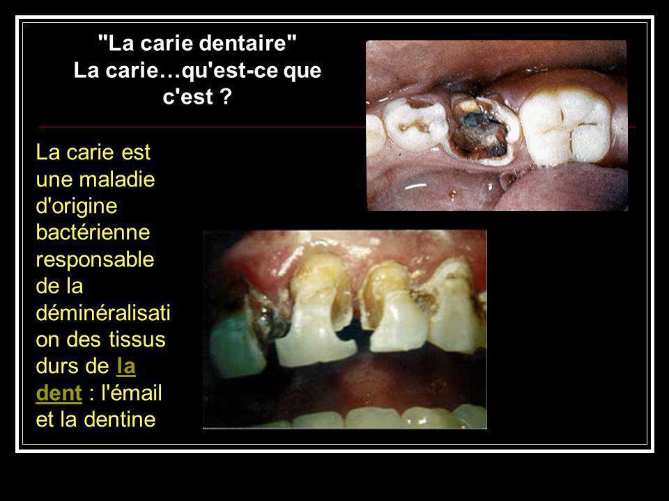 Lq Production de la carie dentaire : Les bactéries + la sous-strate (sucre) + l invité + le temps