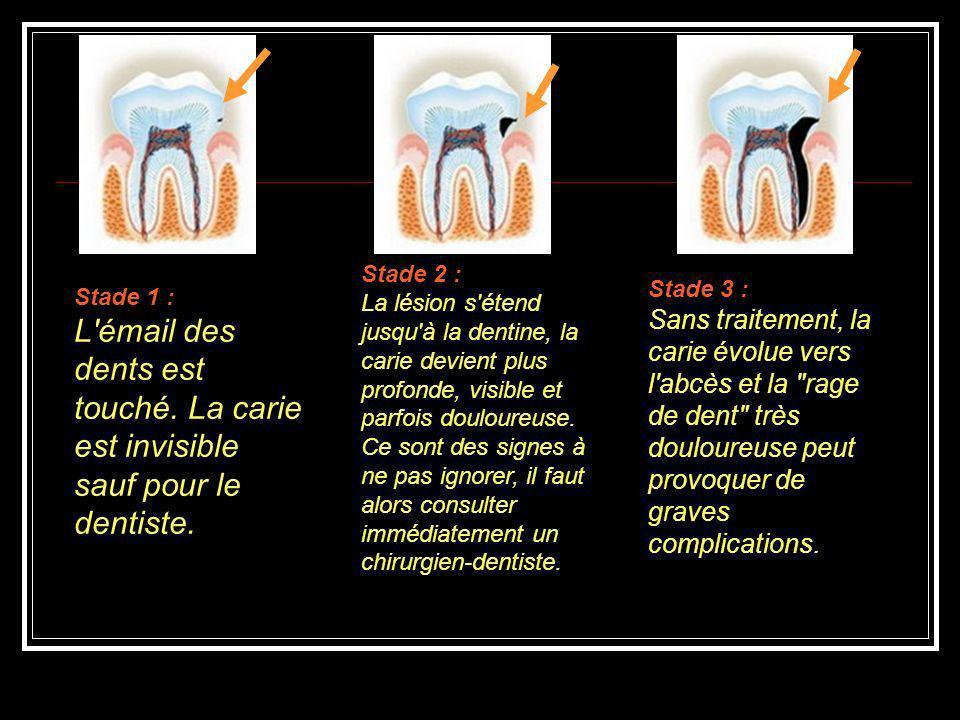 Stade 1 : L'émail des dents est touché. La carie est invisible sauf pour le dentiste. Stade 2 : La lésion s'étend jusqu'à la dentine, la carie devient