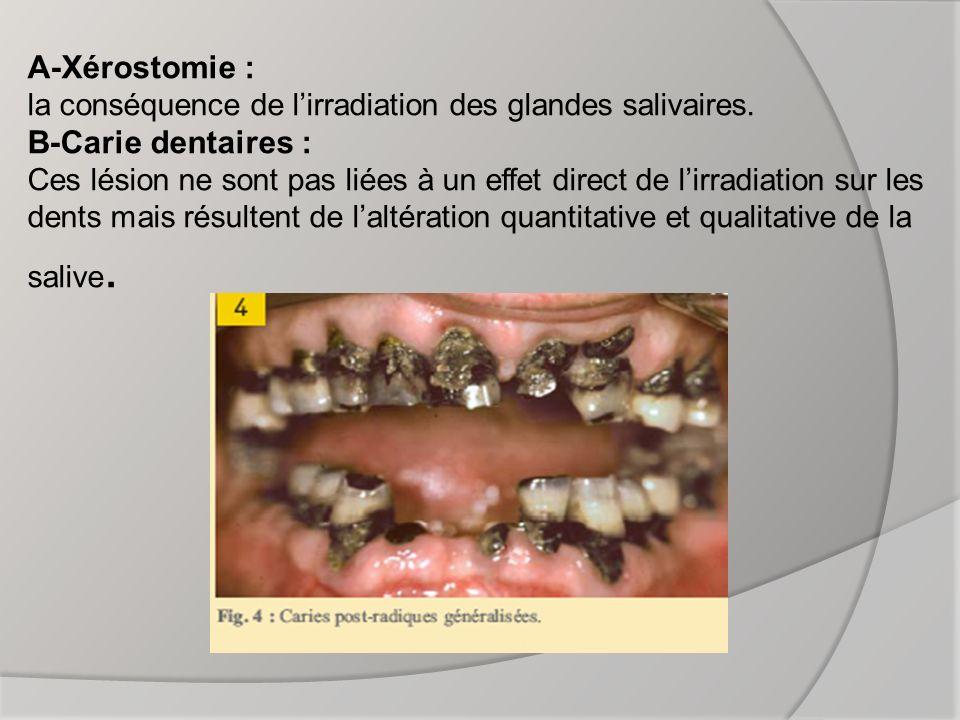 B) le patient denté : Le risque de nécrose osseuse est plus important chez le patient denté que chez le patient édenté (en raison du nombre important de carie).