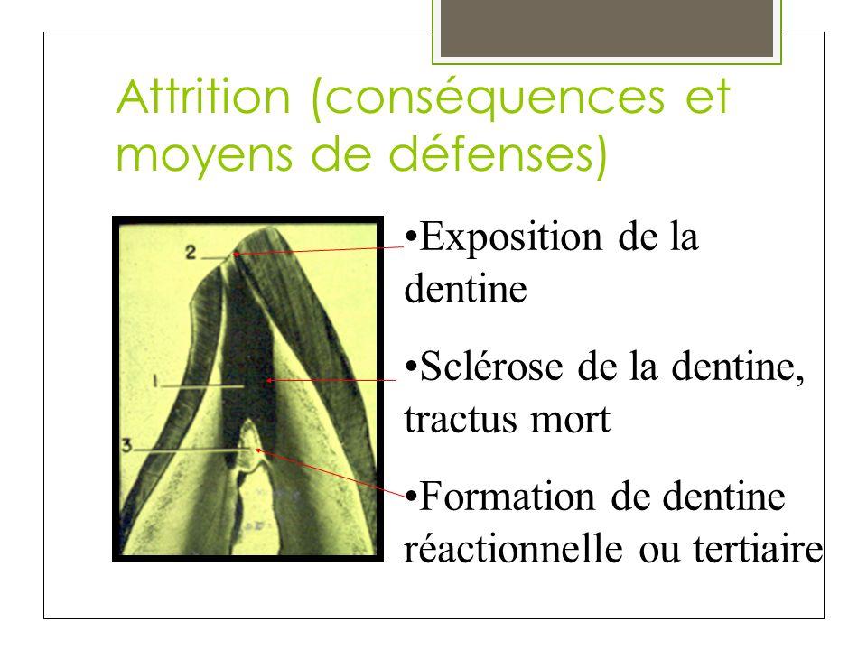 Attrition (conséquences et moyens de défenses) Exposition de la dentine Sclérose de la dentine, tractus mort Formation de dentine réactionnelle ou ter