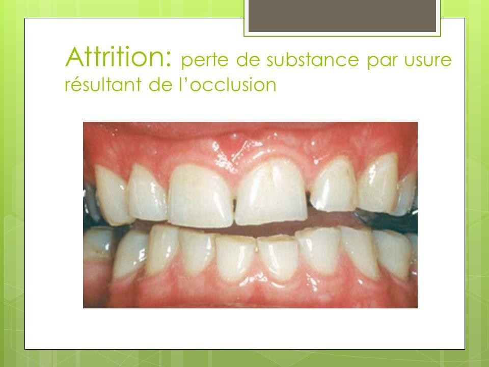 Attrition: perte de substance par usure résultant de locclusion