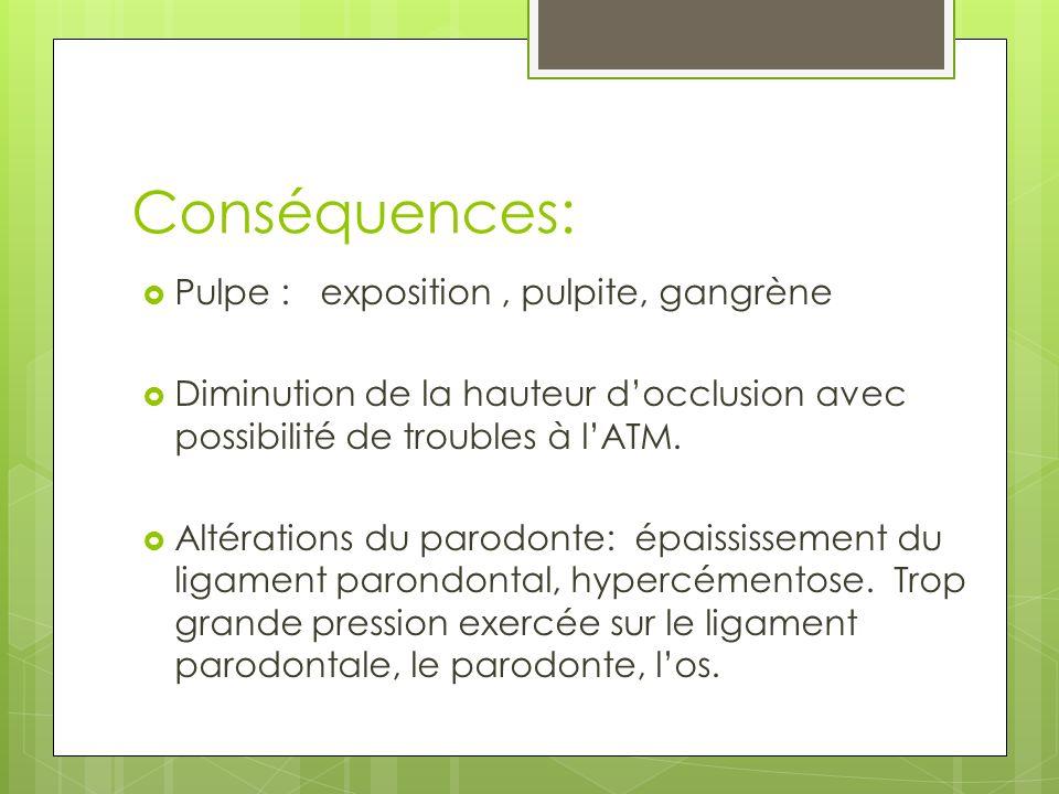 Conséquences: Pulpe : exposition, pulpite, gangrène Diminution de la hauteur docclusion avec possibilité de troubles à lATM. Altérations du parodonte: