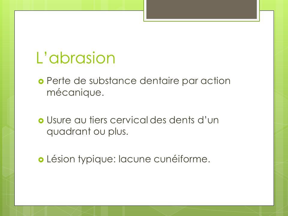 Labrasion Perte de substance dentaire par action mécanique. Usure au tiers cervical des dents dun quadrant ou plus. Lésion typique: lacune cunéiforme.