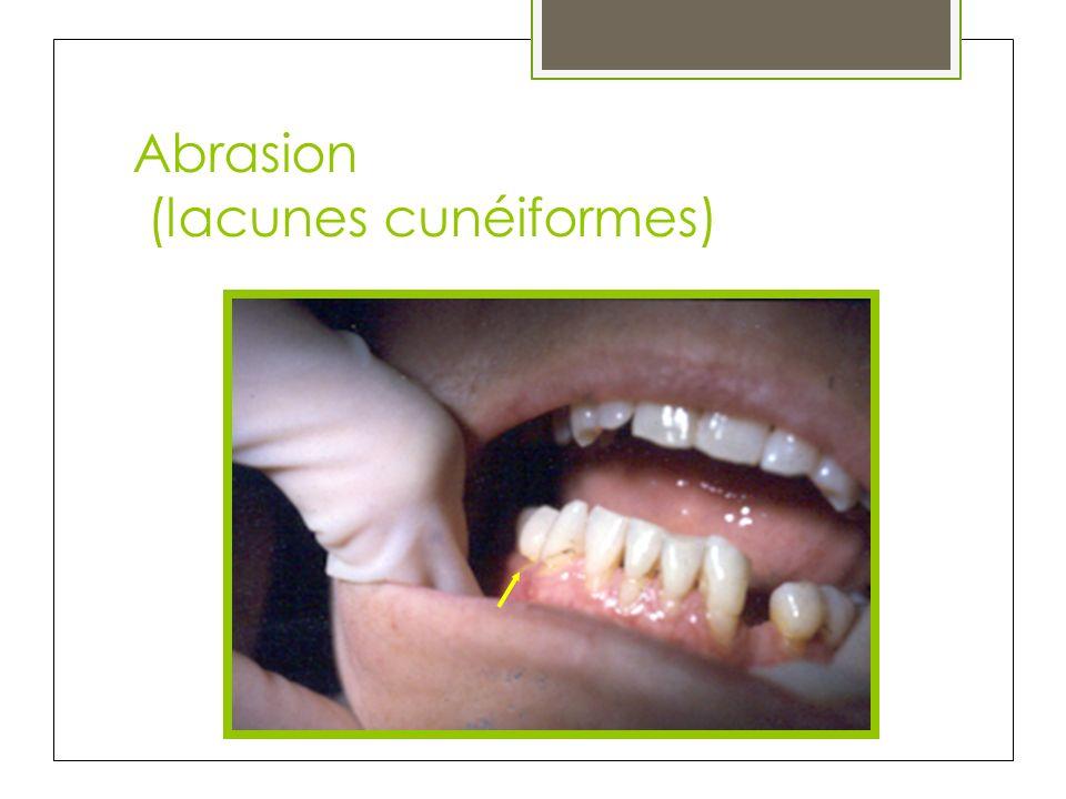 Abrasion (lacunes cunéiformes)