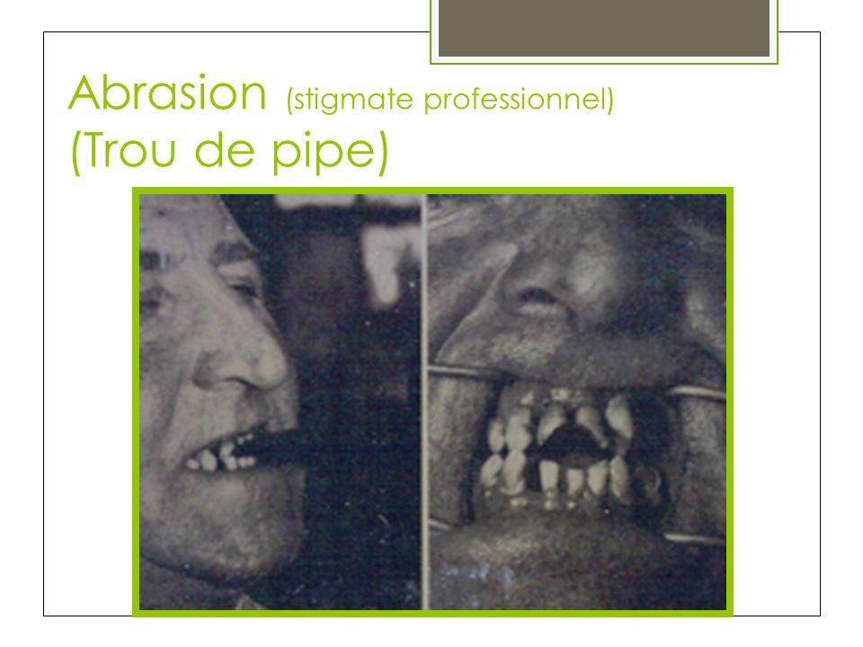 Abrasion (stigmate professionnel) (Trou de pipe)