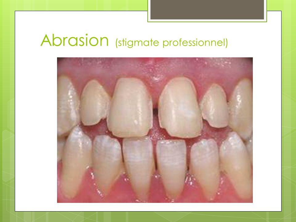 Abrasion (stigmate professionnel)