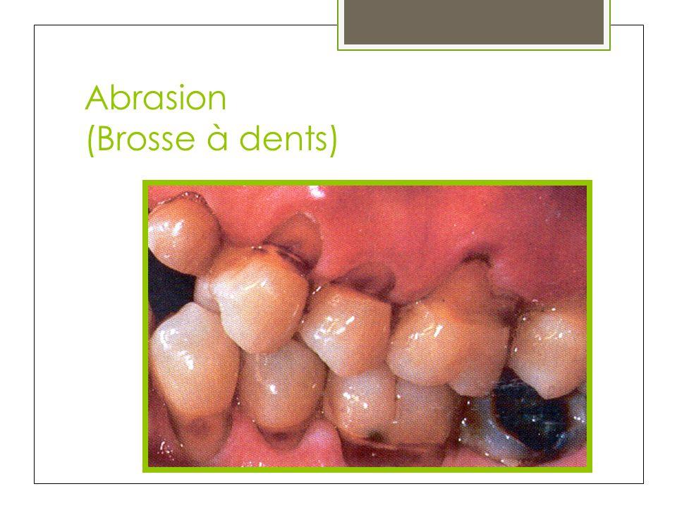 Abrasion (Brosse à dents)