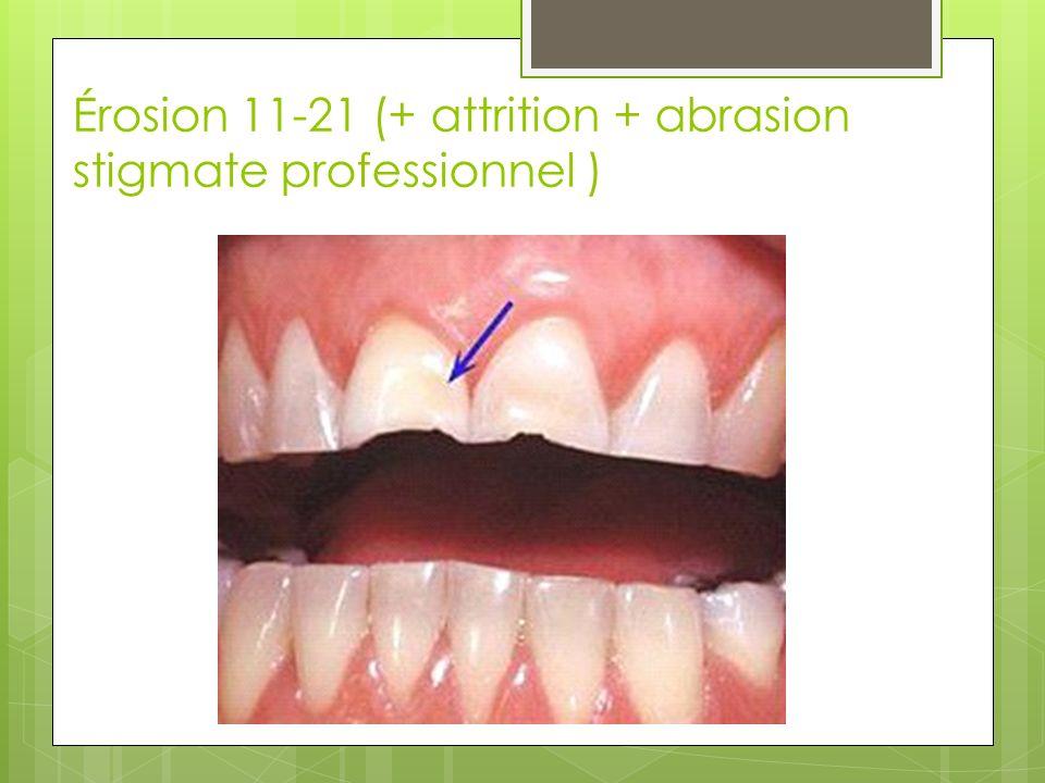 Érosion 11-21 (+ attrition + abrasion stigmate professionnel )