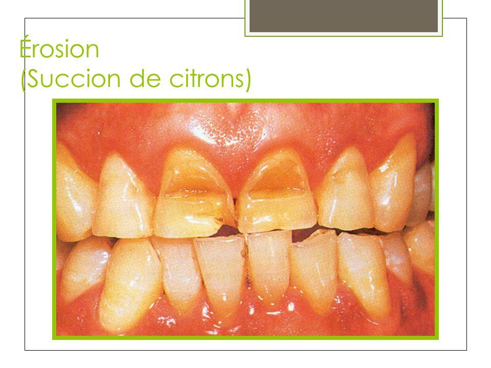 Érosion (Succion de citrons)