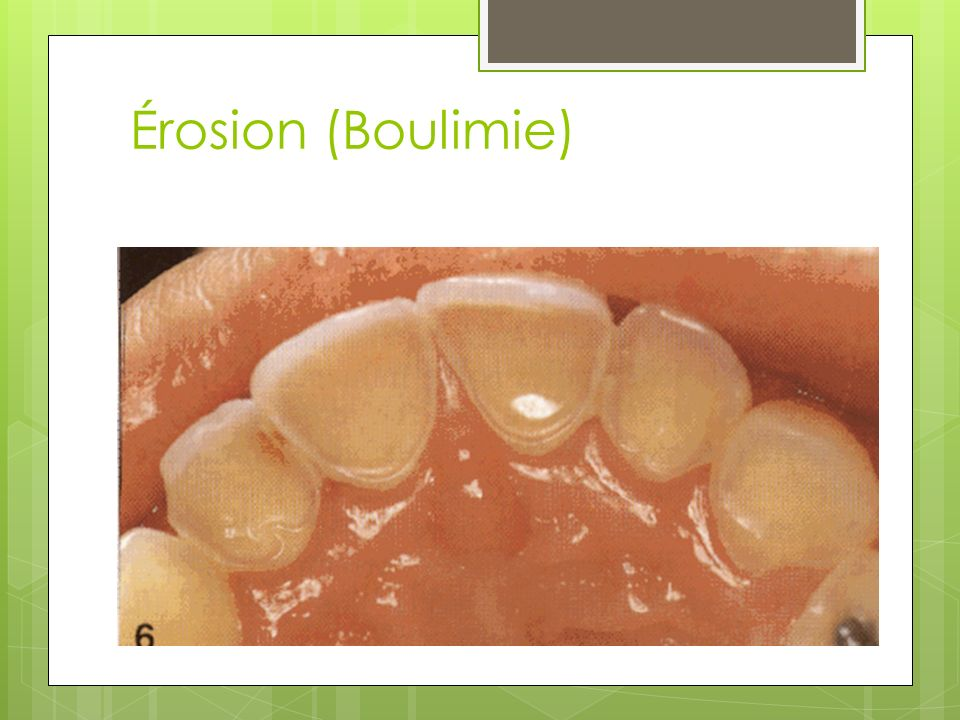 Érosion (Boulimie)