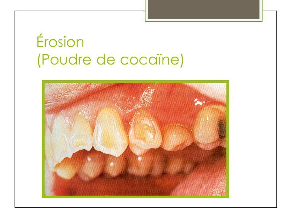 Érosion (Poudre de cocaïne)