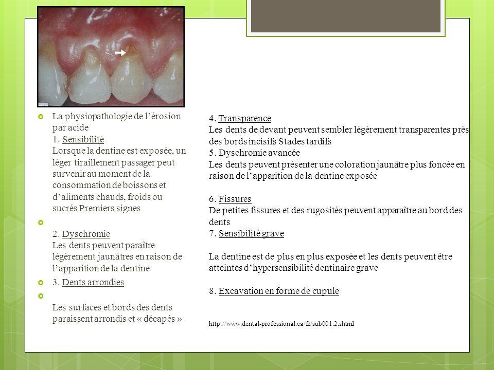 La physiopathologie de lérosion par acide 1. Sensibilité Lorsque la dentine est exposée, un léger tiraillement passager peut survenir au moment de la