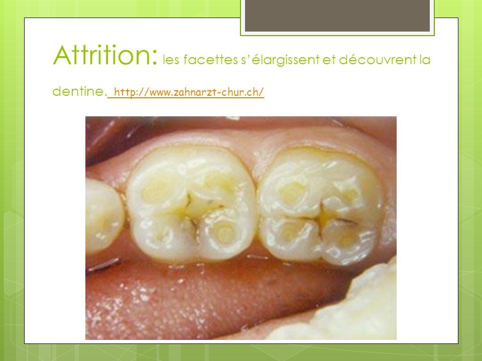 Attrition: les facettes sélargissent et découvrent la dentine. http://www.zahnarzt-chur.ch/ http://www.zahnarzt-chur.ch/