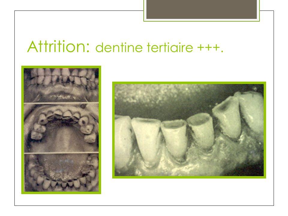 Attrition: dentine tertiaire +++.