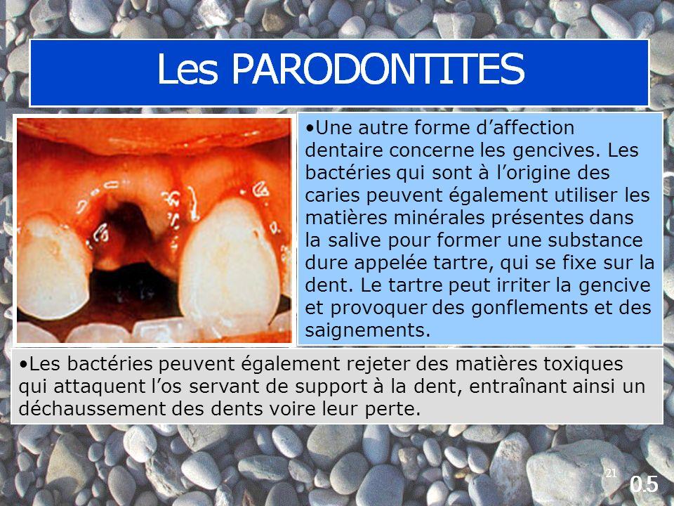 Une autre forme daffection dentaire concerne les gencives.