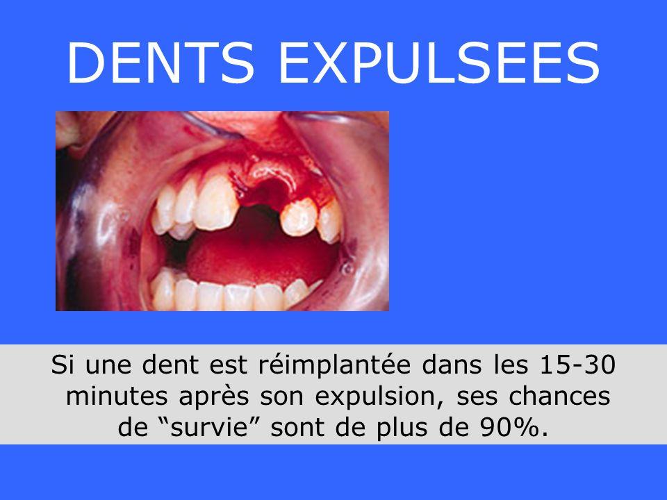 DENTS EXPULSEES Si une dent est réimplantée dans les 15-30 minutes après son expulsion, ses chances de survie sont de plus de 90%.