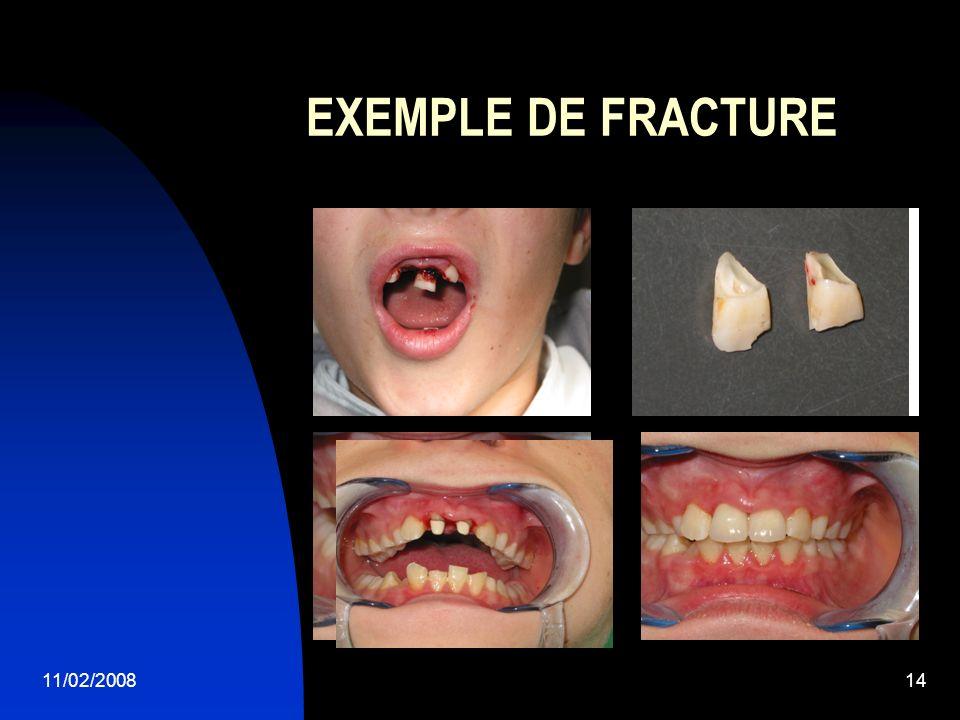 11/02/200814 EXEMPLE DE FRACTURE