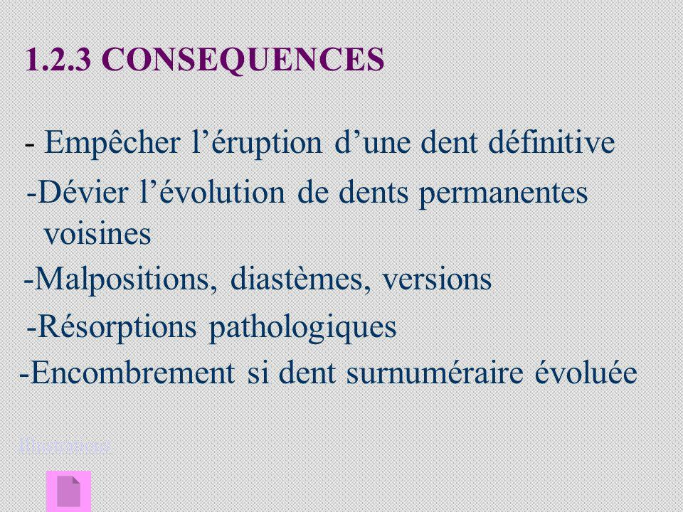 1.2.3 CONSEQUENCES - Empêcher léruption dune dent définitive -Dévier lévolution de dents permanentes voisines -Malpositions, diastèmes, versions -Résorptions pathologiques -Encombrement si dent surnuméraire évoluéeEncombrement si dent surnuméraire évoluée Illustrations