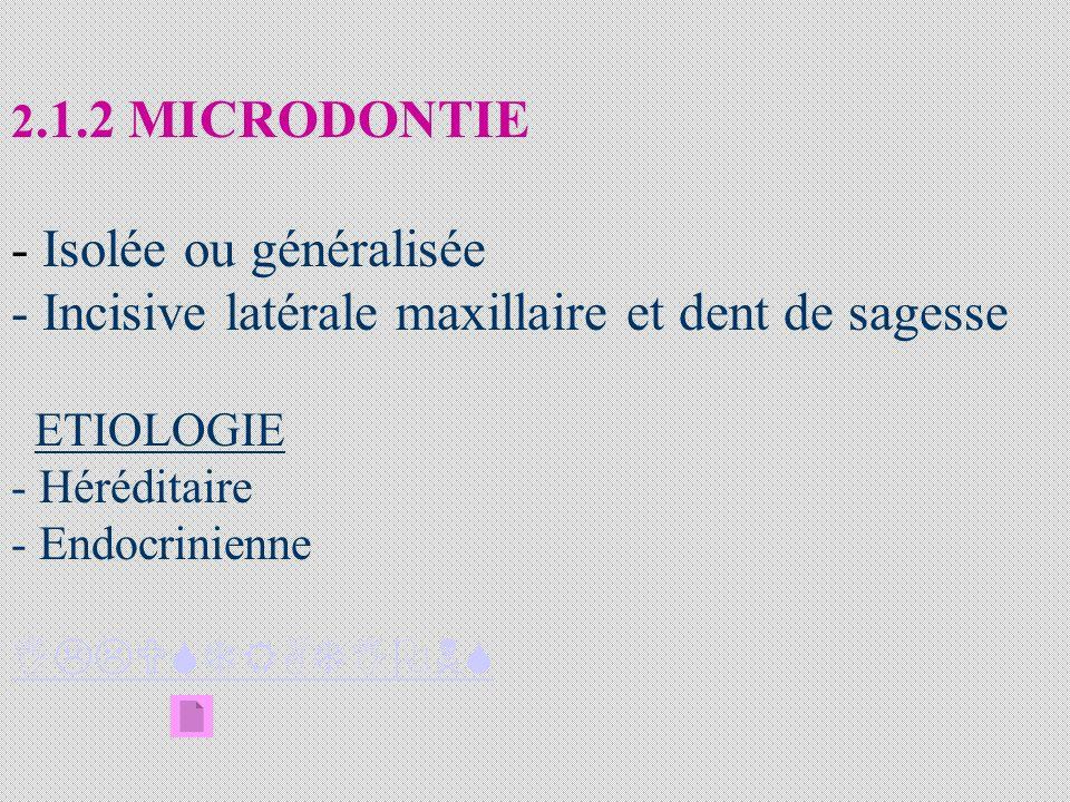 2.1.2 MICRODONTIE - Isolée ou généralisée - Incisive latérale maxillaire et dent de sagesse ETIOLOGIE - Héréditaire - Endocrinienne ILLUSTRATIONS