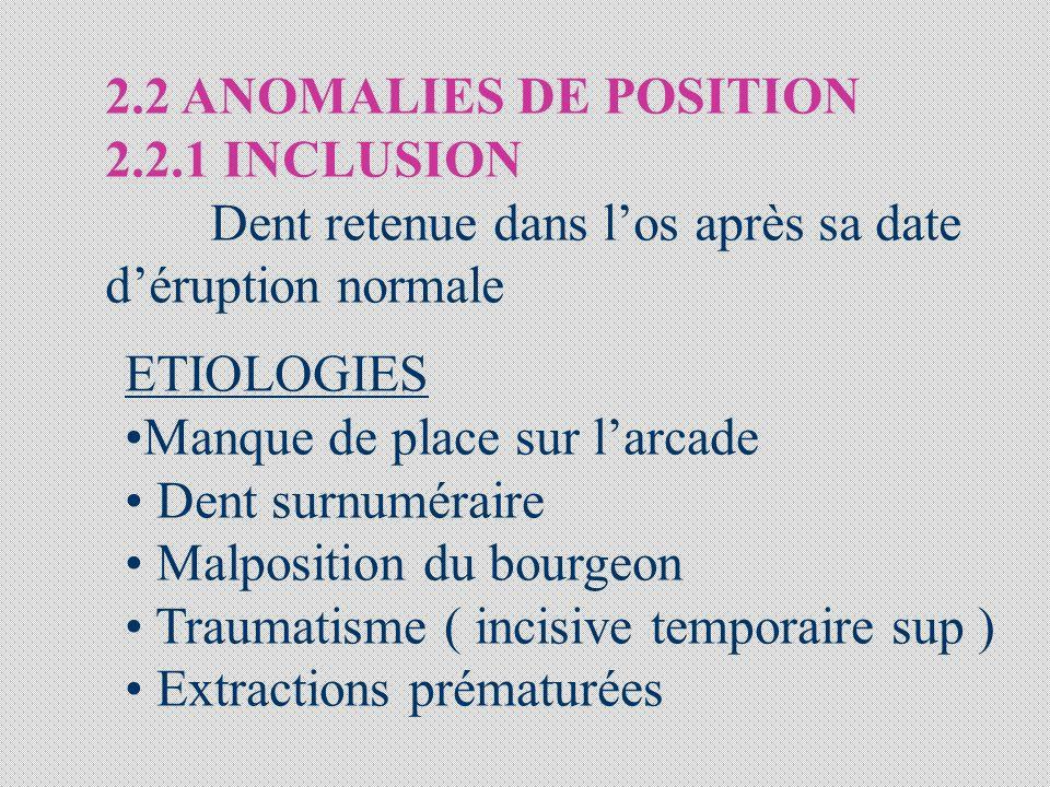 2.2 ANOMALIES DE POSITION 2.2.1 INCLUSION Dent retenue dans los après sa date déruption normale ETIOLOGIES Manque de place sur larcade Dent surnumérai