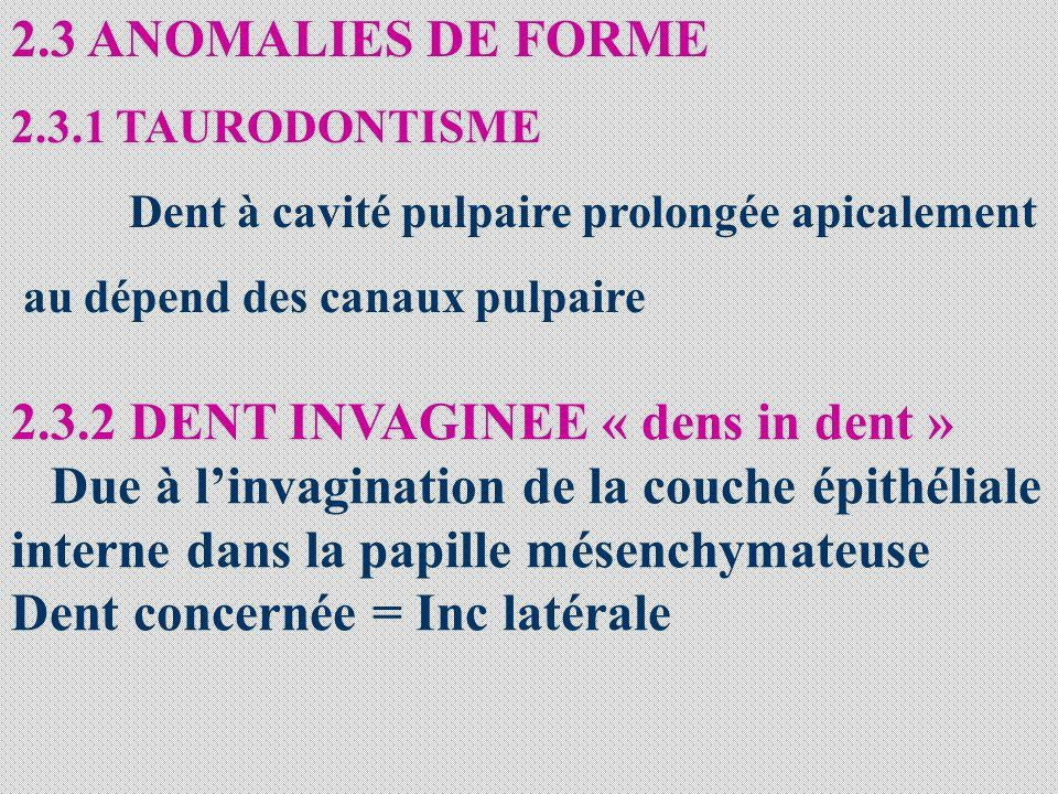 2.3 ANOMALIES DE FORME 2.3.1 TAURODONTISME Dent à cavité pulpaire prolongée apicalement au dépend des canaux pulpaire 2.3.2 DENT INVAGINEE « dens in d
