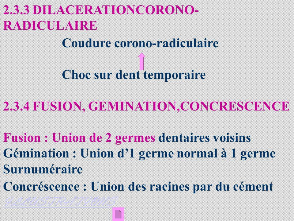 2.3.3 DILACERATIONCORONO- RADICULAIRE Coudure corono-radiculaire Choc sur dent temporaire 2.3.4 FUSION, GEMINATION,CONCRESCENCE Fusion : Union de 2 ge