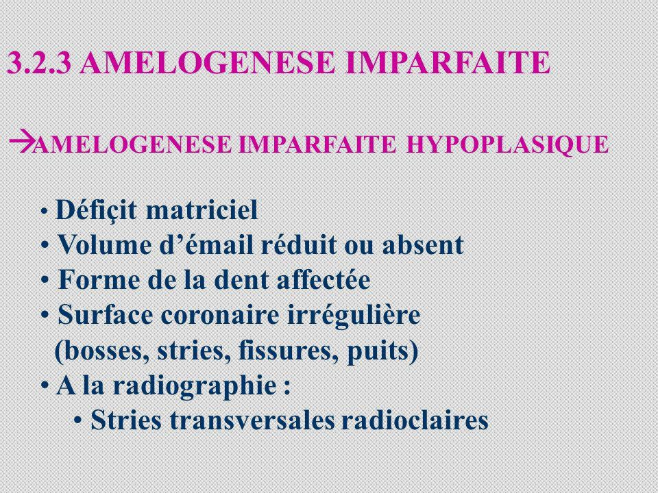 3.2.3 AMELOGENESE IMPARFAITE AMELOGENESE IMPARFAITE HYPOPLASIQUE Défiçit matriciel Volume démail réduit ou absent Forme de la dent affectée Surface coronaire irrégulière (bosses, stries, fissures, puits) A la radiographie : Stries transversales radioclaires