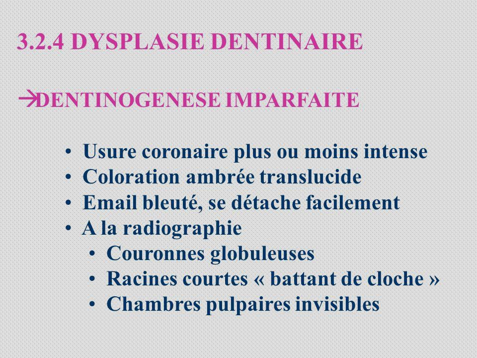 3.2.4 DYSPLASIE DENTINAIRE DENTINOGENESE IMPARFAITE Usure coronaire plus ou moins intense Coloration ambrée translucide Email bleuté, se détache facil