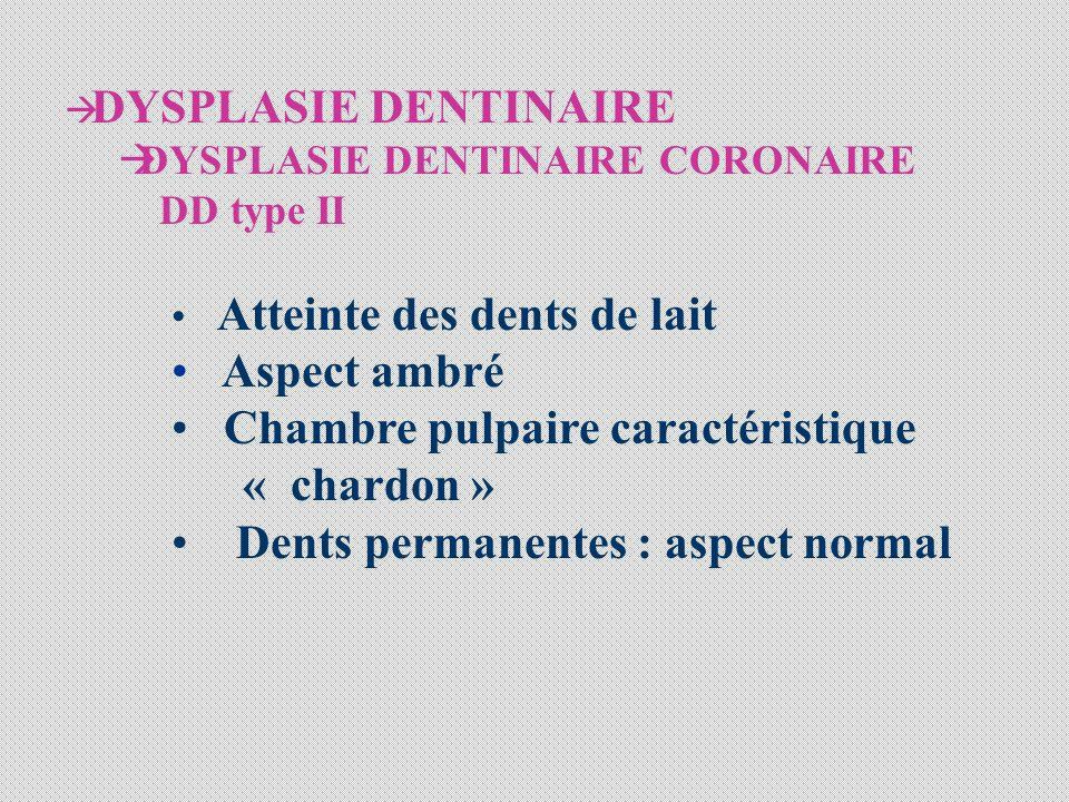 DYSPLASIE DENTINAIRE DYSPLASIE DENTINAIRE CORONAIRE DD type II Atteinte des dents de lait Aspect ambré Chambre pulpaire caractéristique « chardon » Dents permanentes : aspect normal