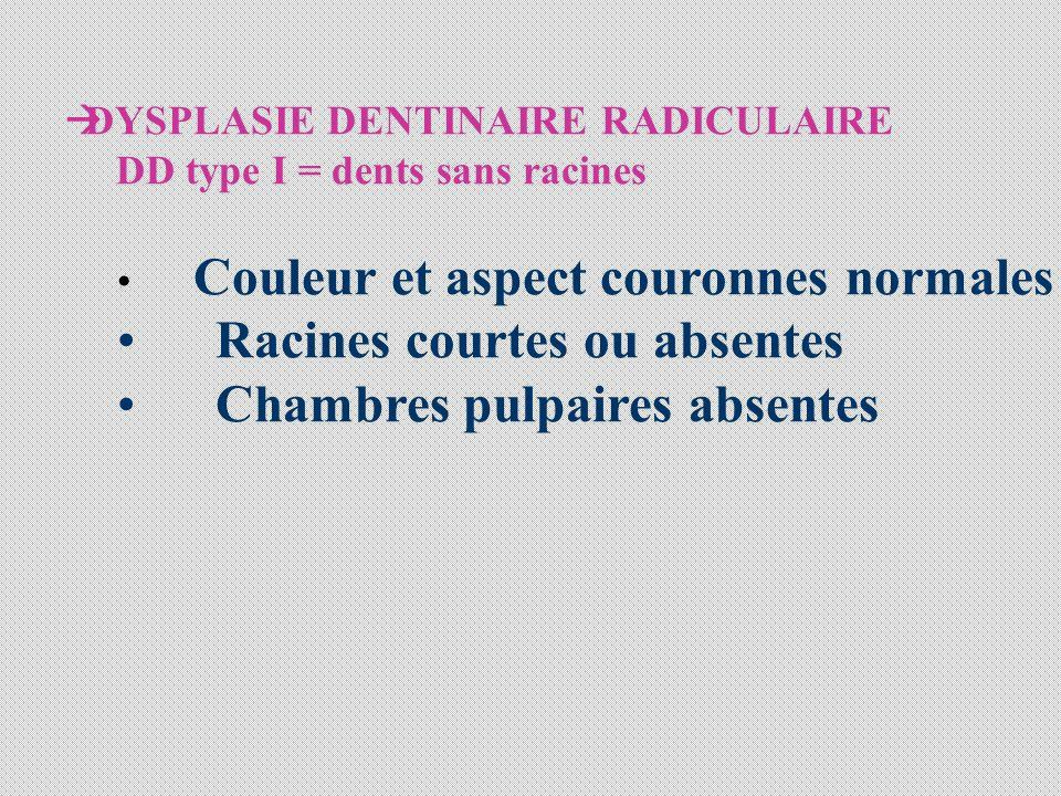 DYSPLASIE DENTINAIRE RADICULAIRE DD type I = dents sans racines Couleur et aspect couronnes normales Racines courtes ou absentes Chambres pulpaires ab
