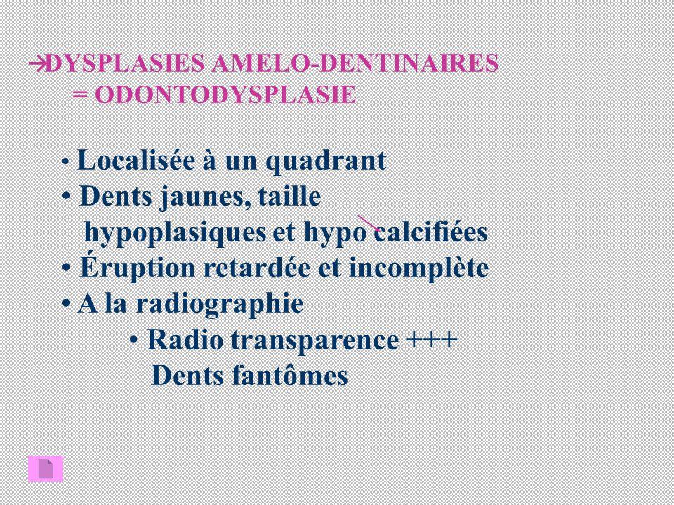 DYSPLASIES AMELO-DENTINAIRES = ODONTODYSPLASIE Localisée à un quadrant Dents jaunes, taille hypoplasiques et hypo calcifiées Éruption retardée et incomplète A la radiographie Radio transparence +++ Dents fantômes