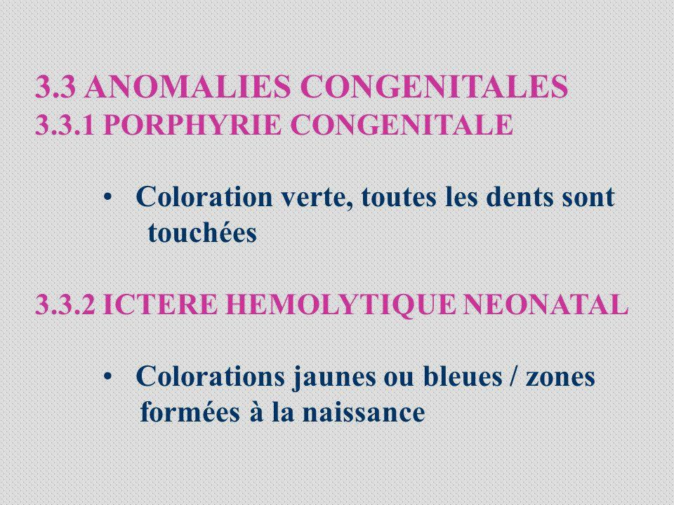 3.3 ANOMALIES CONGENITALES 3.3.1 PORPHYRIE CONGENITALE Coloration verte, toutes les dents sont touchées 3.3.2 ICTERE HEMOLYTIQUE NEONATAL Colorations jaunes ou bleues / zones formées à la naissance