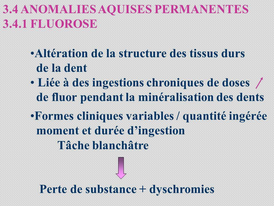 3.4 ANOMALIES AQUISES PERMANENTES 3.4.1 FLUOROSE Altération de la structure des tissus durs de la dent Liée à des ingestions chroniques de doses de fl