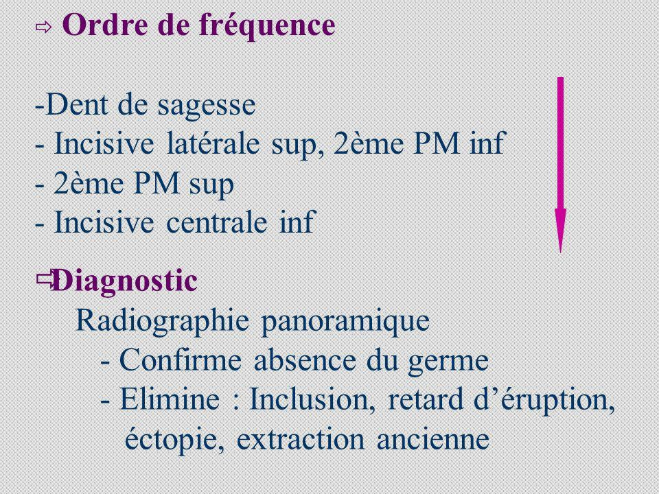 Ordre de fréquence -Dent de sagesse - Incisive latérale sup, 2ème PM inf - 2ème PM sup - Incisive centrale inf Diagnostic Radiographie panoramique - Confirme absence du germe - Elimine : Inclusion, retard déruption, éctopie, extraction ancienne