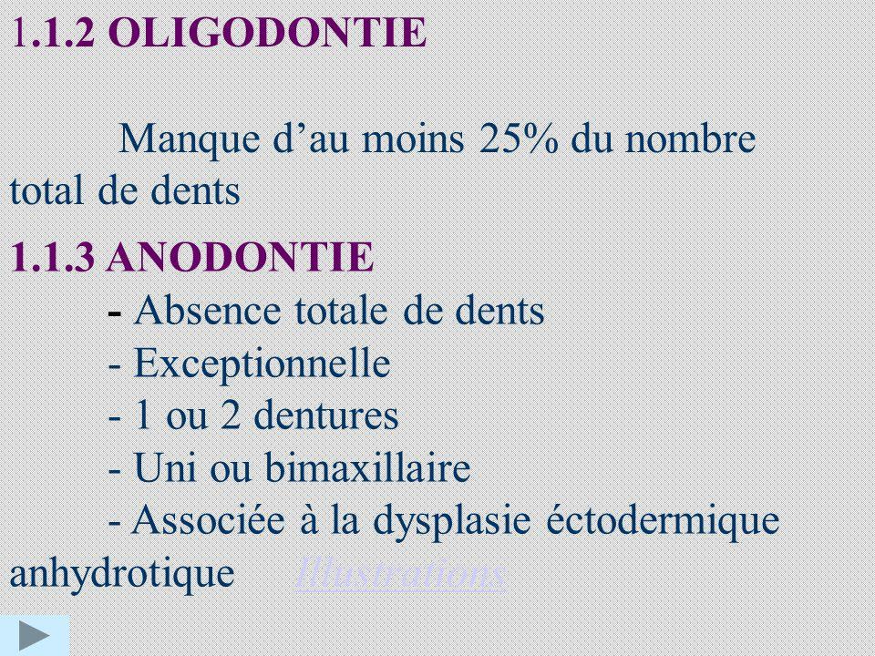 1.1.2 OLIGODONTIE Manque dau moins 25% du nombre total de dents 1.1.3 ANODONTIE - Absence totale de dents - Exceptionnelle - 1 ou 2 dentures - Uni ou bimaxillaire - Associée à la dysplasie éctodermique anhydrotique IllustrationsIllustrations