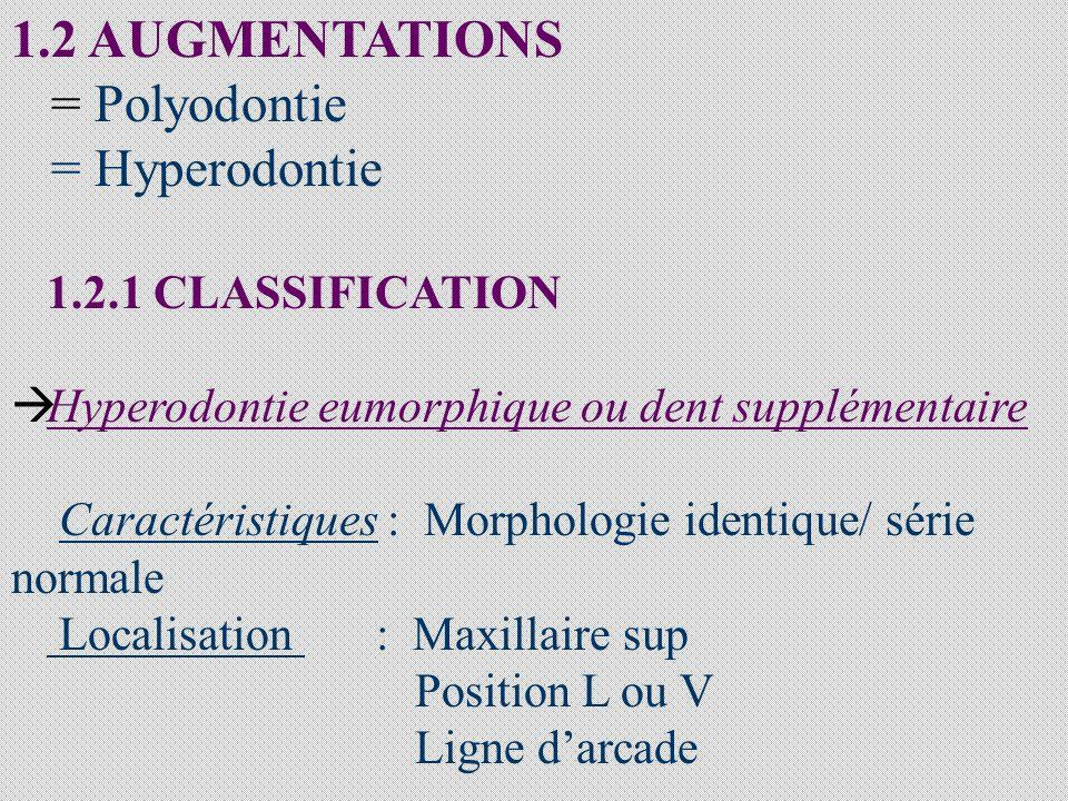 1.2 AUGMENTATIONS = Polyodontie = Hyperodontie 1.2.1 CLASSIFICATION Hyperodontie eumorphique ou dent supplémentaire Caractéristiques : Morphologie identique/ série normale Localisation : Maxillaire sup Position L ou V Ligne darcade