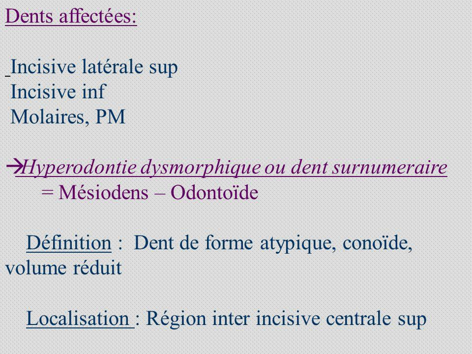 2.3.3 DILACERATIONCORONO- RADICULAIRE Coudure corono-radiculaire Choc sur dent temporaire 2.3.4 FUSION, GEMINATION,CONCRESCENCE Fusion : Union de 2 germes dentaires voisins Gémination : Union d1 germe normal à 1 germe Surnuméraire Concréscence : Union des racines par du cément ILLUSTRATIONS