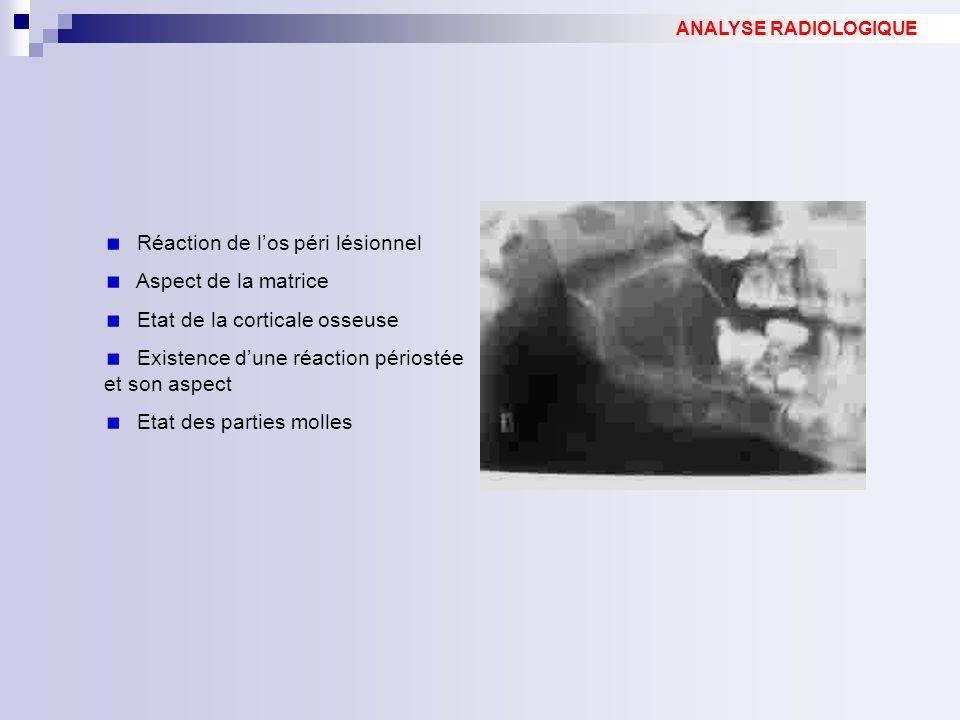Réaction de los péri lésionnel Aspect de la matrice Etat de la corticale osseuse Existence dune réaction périostée et son aspect Etat des parties moll