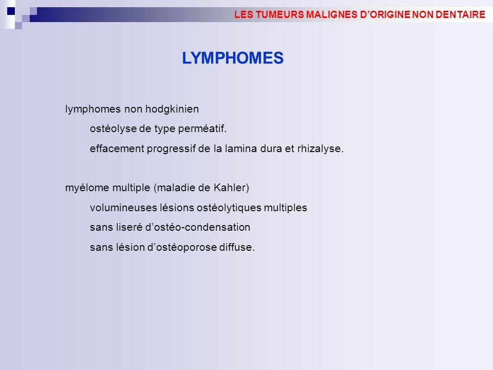 lymphomes non hodgkinien ostéolyse de type perméatif. effacement progressif de la lamina dura et rhizalyse. myélome multiple (maladie de Kahler) volum