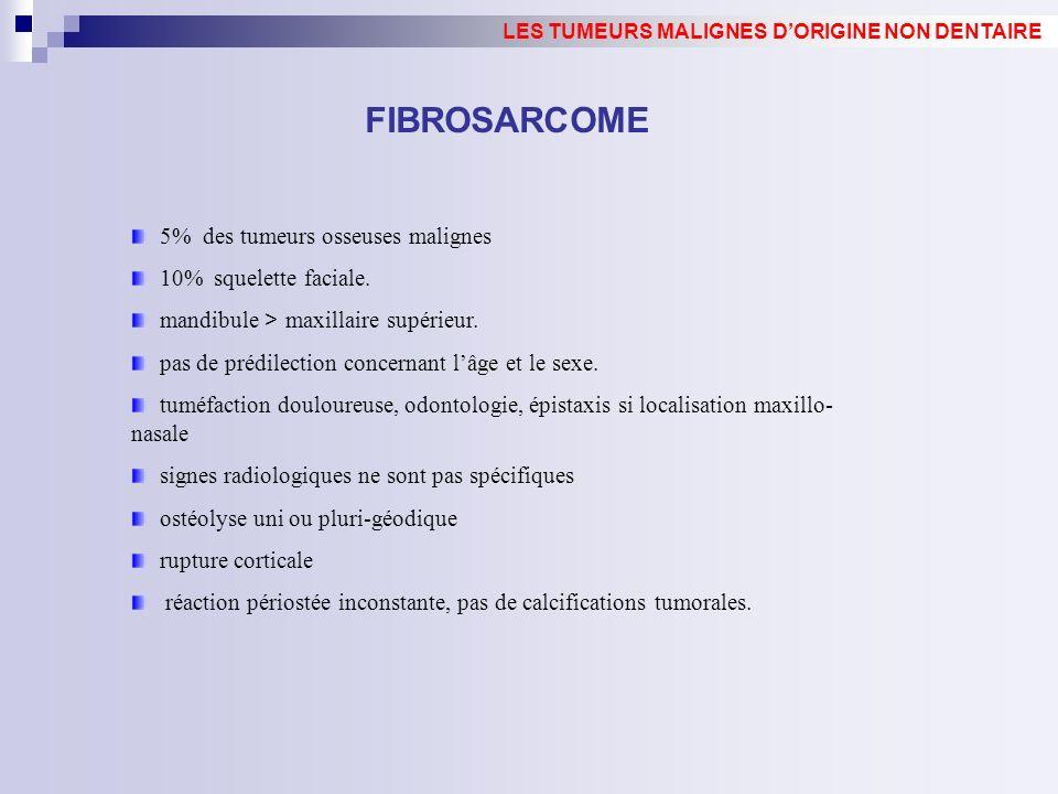FIBROSARCOME 5% des tumeurs osseuses malignes 10% squelette faciale. mandibule > maxillaire supérieur. pas de prédilection concernant lâge et le sexe.