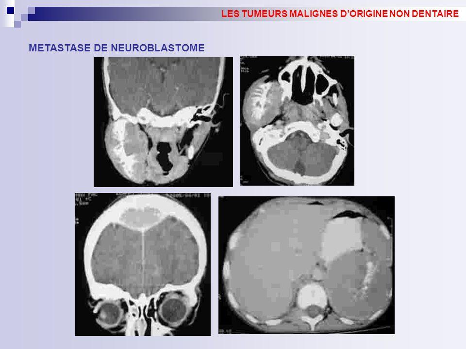 METASTASE DE NEUROBLASTOME LES TUMEURS MALIGNES DORIGINE NON DENTAIRE