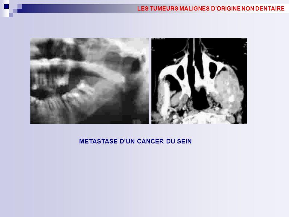 METASTASE DUN CANCER DU SEIN LES TUMEURS MALIGNES DORIGINE NON DENTAIRE