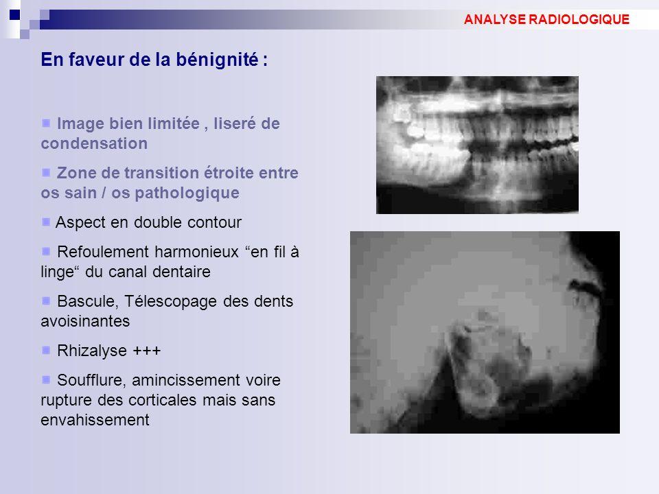 En faveur de la bénignité : Image bien limitée, liseré de condensation Zone de transition étroite entre os sain / os pathologique Aspect en double con