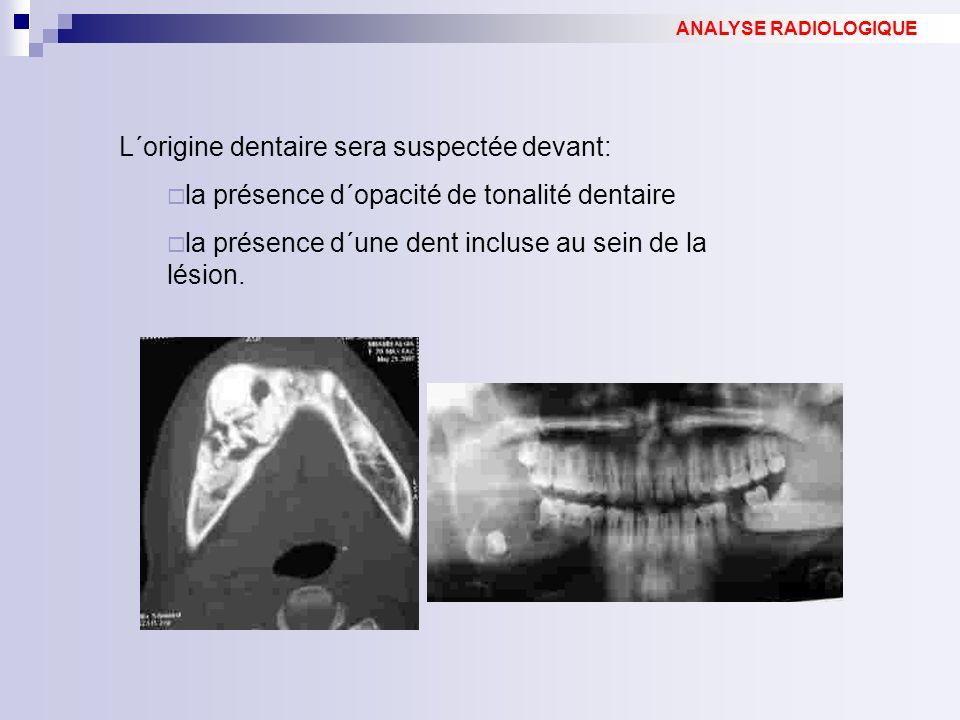 L´origine dentaire sera suspectée devant: la présence d´opacité de tonalité dentaire la présence d´une dent incluse au sein de la lésion. ANALYSE RADI