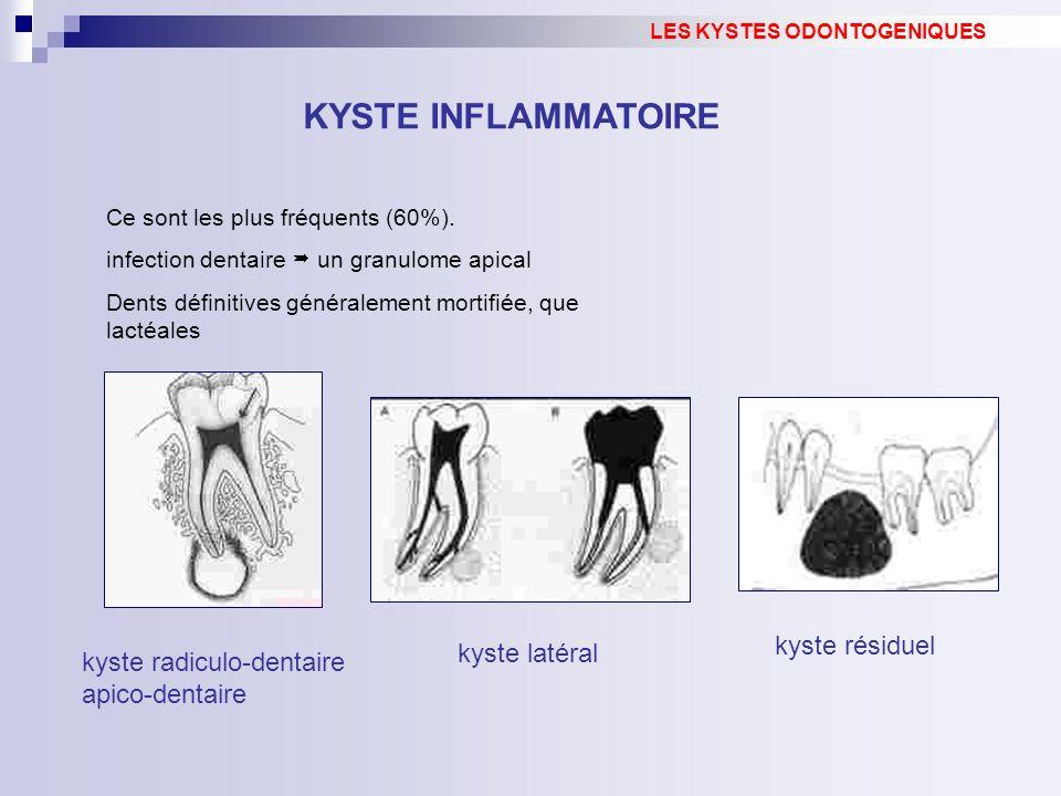 kyste résiduel LES KYSTES ODONTOGENIQUES KYSTE INFLAMMATOIRE Ce sont les plus fréquents (60%).