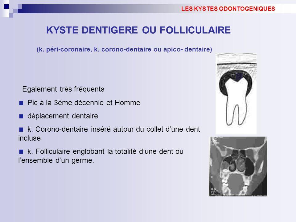 Egalement très fréquents Pic à la 3éme décennie et Homme déplacement dentaire k. Corono-dentaire inséré autour du collet dune dent incluse k. Follicul